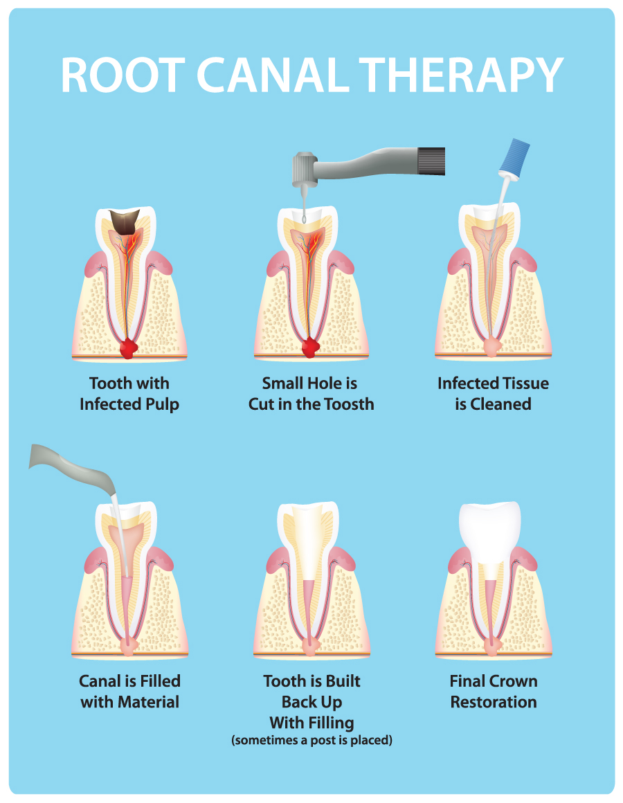 Root Canal Therapy | Cameo Dental – Family Dentistry in Rosemount ...